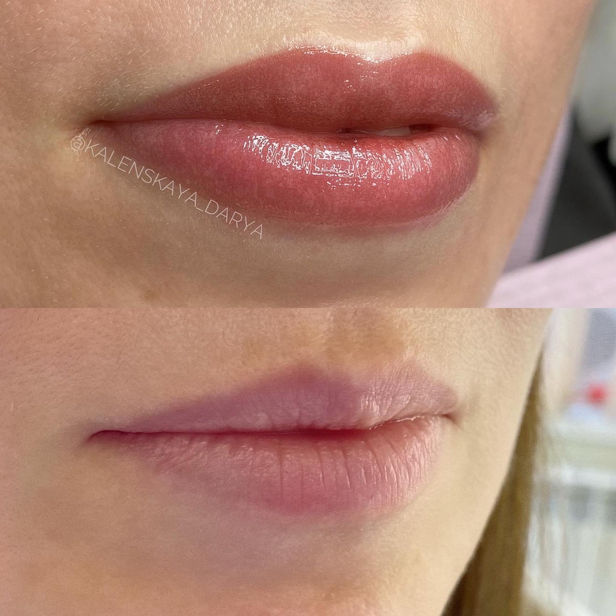 Перманент губ до и после процедуры