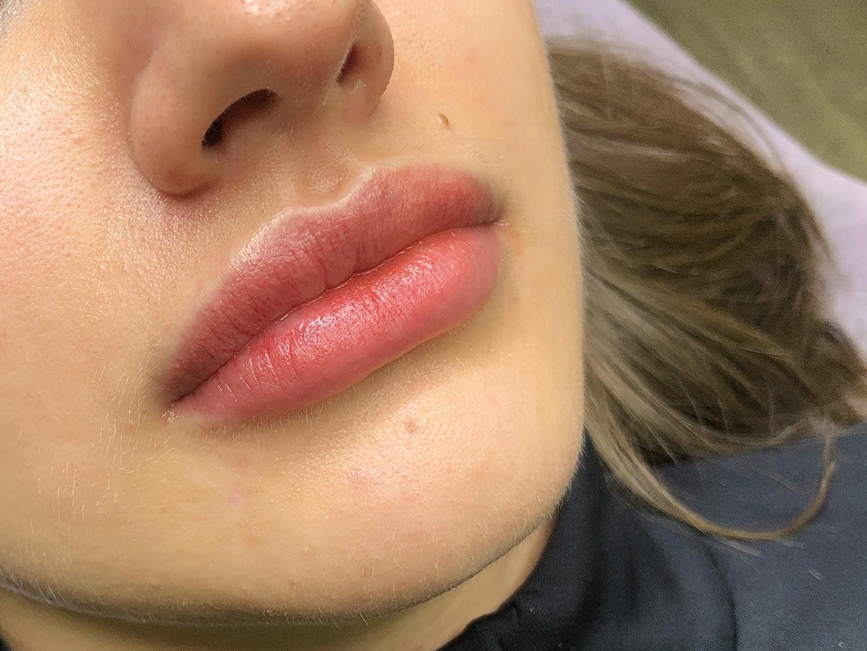 Бесконтурный татуаж губ после процедуры в Иваново